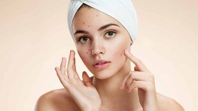 Dr. Katie's Personal Journey with Acne